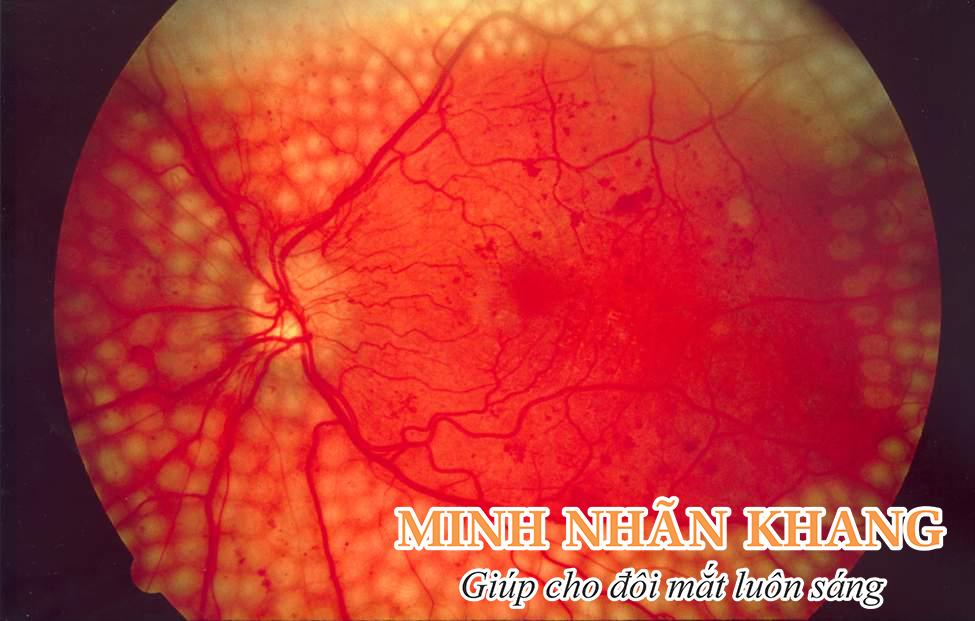 Bệnh tiểu đường dễ gây biến chứng nhìn đôi, nhìn ba ở mắt